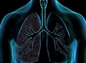 pneumonas.medium